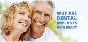 why are dental implants so great
